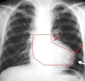 radiografia_tetralogia_Fallot