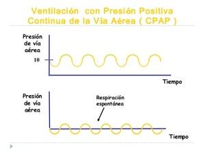 ventilacin-mecnica-invasiva-capnografia-e-interpretacin-ondas-cicatsalud-32-638