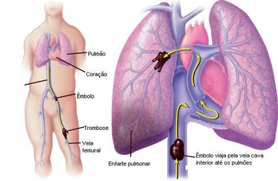 Tromboembolismo pediátrico, evaluación de laepidemiología.