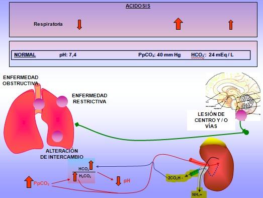Tratamiento de la acidosis metabólica en pediatría conbicarbonato