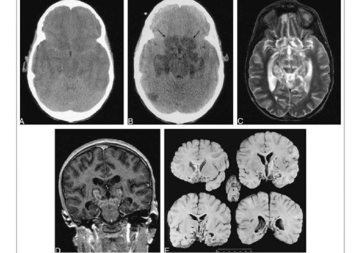 Edema cerebral en niños con cetoacidosisdiabética